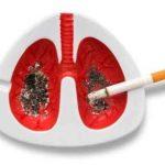 Mulher morre de câncer após receber pulmões de fumante